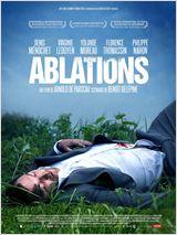 thb_Ablations
